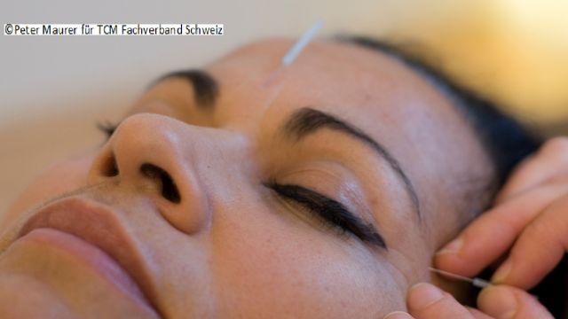Augenakupunktur AcuNova